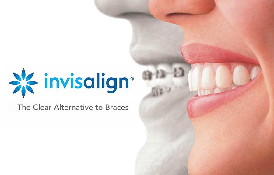 Invisalign certified Marina Del Rey & Los Angeles dentist