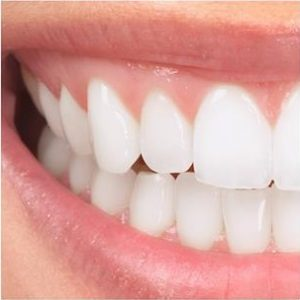 Dental Veneers Marina del Rey