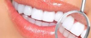 Cosmetic Dentistry Marina Del Rey