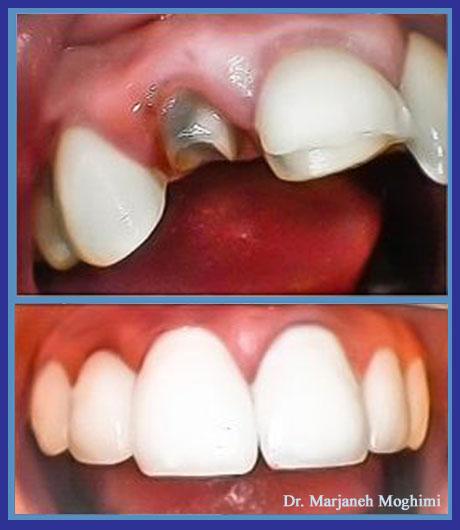 dentl crowns cosmetic dentistry in marina del rey