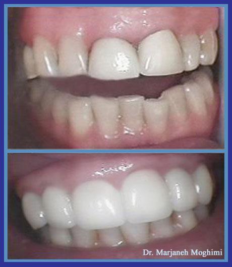 dental crowns marina del rey