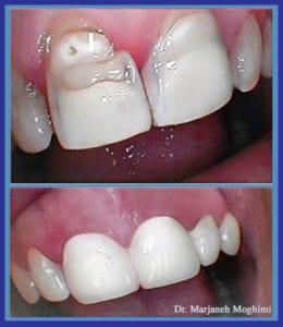 cosmetic reconstruction in Marina del Rey dentistry