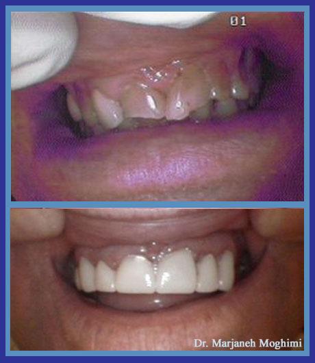 Porcelain Zirconia crowns- cosmetic dentistry Marina del Rey