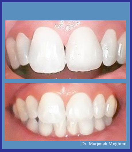 Zirconia crowns Marina del Rey - cosmetic dentistry