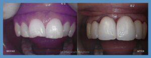 cosmetic zirconia/ porcelain crowns